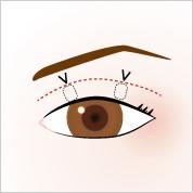 切らない眼瞼下垂修正
