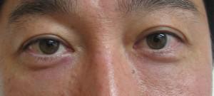 目の下術後1日-2
