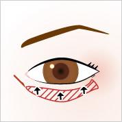eye_around_up[1]