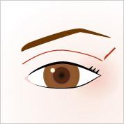eye_double_incision[1]