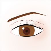 eye_smart_line[1]