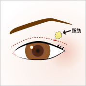 eye_double_fat[1]